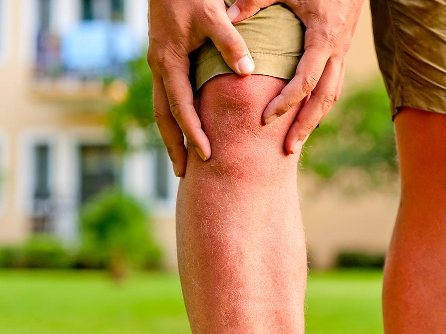 Chiropractor voor knie